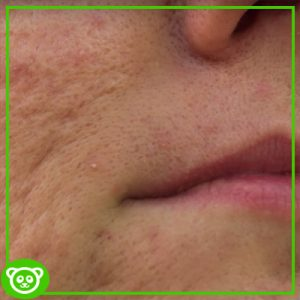 Microneedling Side Effects - That You Should Be Aware Of