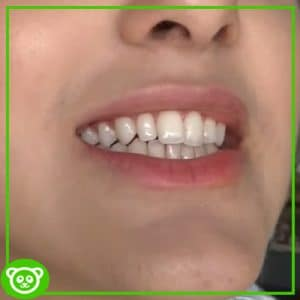 DIY Teeth Whitening Naturally