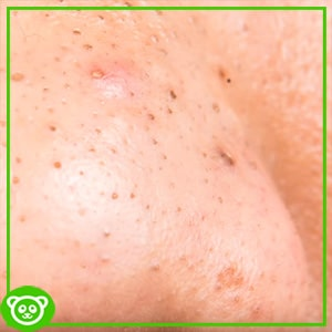 How to Prevent, Minimize and Treat Blackheads? – Simple Ways